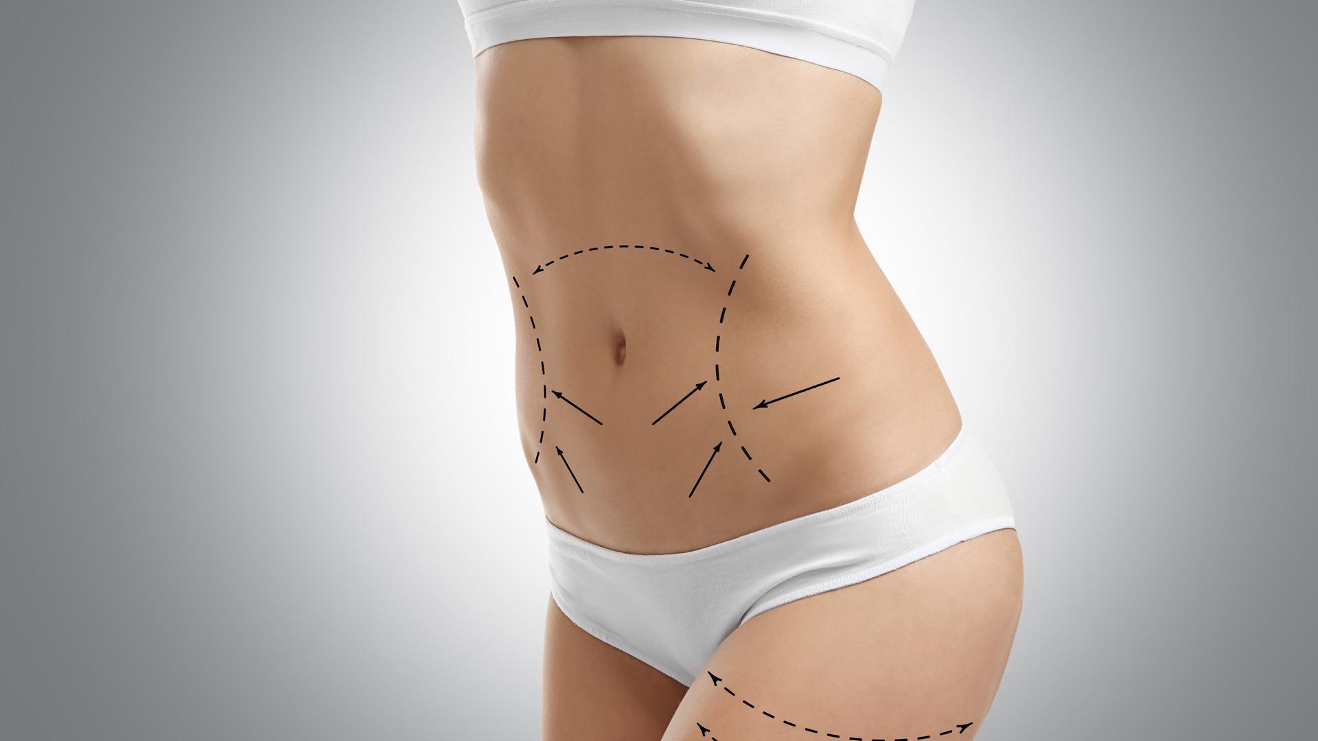 Bauch mit angezeichneten Schnittverläufen