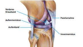 innenbandriss knie wie lange arbeitsunfähig