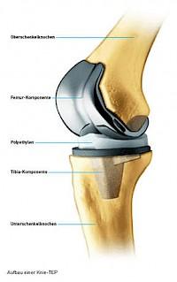 Knie krank lange schlittenprothese wie Knie OP