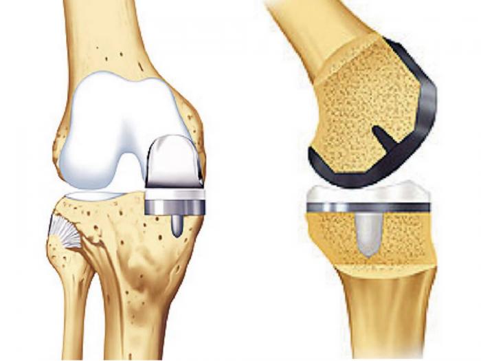 Knie krank lange schlittenprothese wie Wer hat